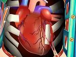 Kalp Nakli Ameliyatı Oyna