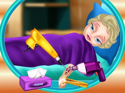 Elsa Kol Ameliyatı Oyna